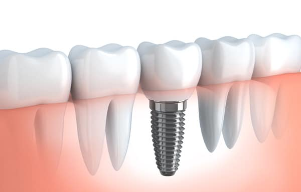 Dental Implants Royal Palm Beach, FL
