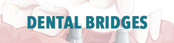 Dental Bridges Royal Palm Beach, FL
